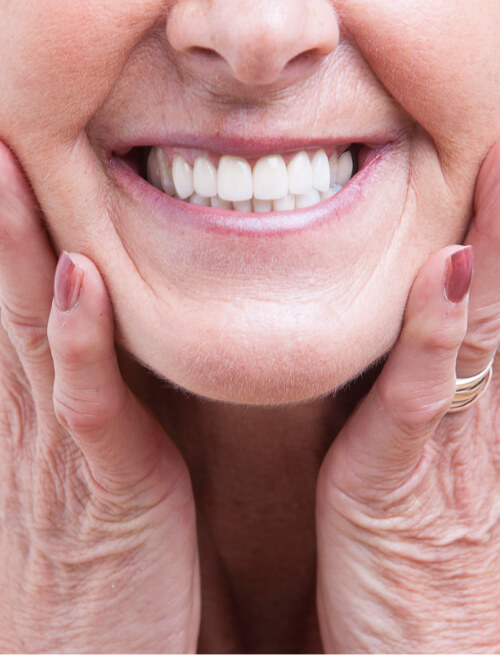 Benefits of a fixed bridge on implants