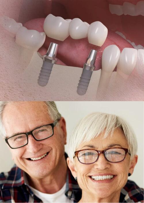Benefits with fixed bridge on implants