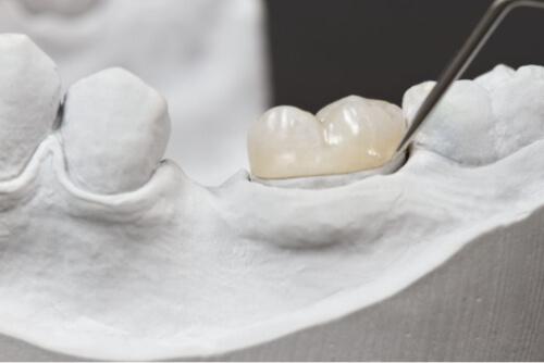 Porcelain Crowns (Caps)