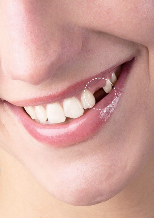 Benefits of an all-ceramic crown on implant