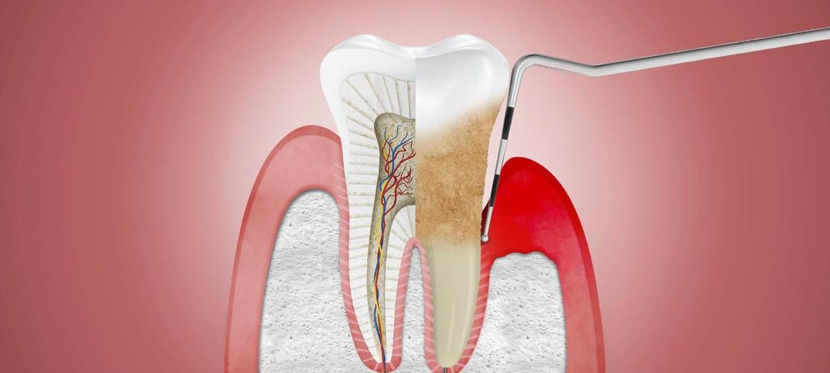 What is Periodontal (Gum) Disease