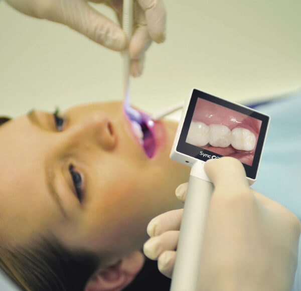 Intra-Oral Camera
